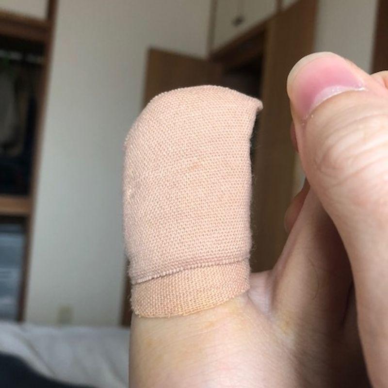 Glamorous sporting injury - toenail removal photo